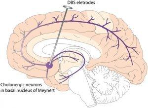 Nucleus Basalis of Meynert Network in Temporal Lobe Epilepsy